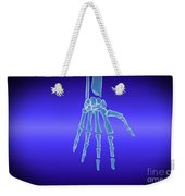 X-ray View Of Human Hand Weekender Tote Bag