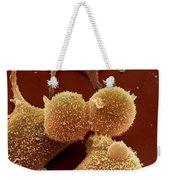 Human Fibroblast Cells Weekender Tote Bag