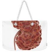 Polycystic Kidney Weekender Tote Bag
