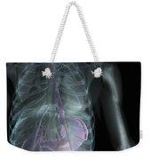 X-ray Anatomy Weekender Tote Bag