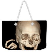 3d Ct Reconstruction Of Head And Hand Weekender Tote Bag
