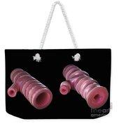 Asthmatic Bronchiole Weekender Tote Bag