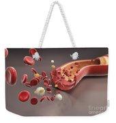 Blood Vessel With Cells Weekender Tote Bag