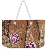 Chlamydia Infection Tem Weekender Tote Bag