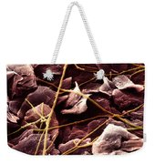 Candida And Epithelial Cells Weekender Tote Bag