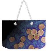 Rubella Virus Weekender Tote Bag