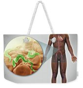 Sleeping Sickness Infection Weekender Tote Bag
