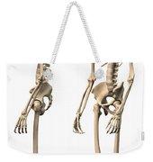 Anatomy Of Male Human Skeleton, Side Weekender Tote Bag