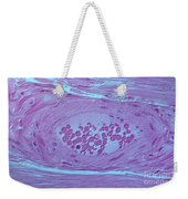 Arteriole And Blood Cells, Lm Weekender Tote Bag