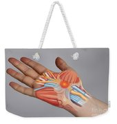 Carpal Tunnel Syndrome Weekender Tote Bag