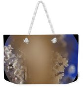 Cataracts, Patients View Weekender Tote Bag