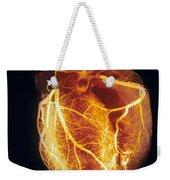 Colored Arteriogram Of Arteries Of Healthy Heart Weekender Tote Bag