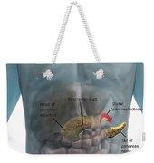 Distal Pancreatectomy Weekender Tote Bag