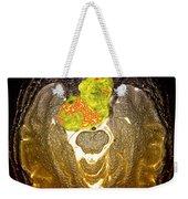 Enhanced Mri Clival Chordoma 6 Weekender Tote Bag