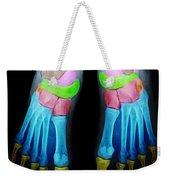 Foot X-ray Weekender Tote Bag
