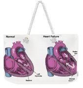 Healthy Heart Vs. Heart Failure Weekender Tote Bag