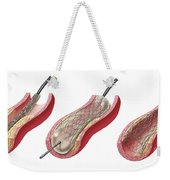 Insertion Of Stent Into Atherosclerotic Weekender Tote Bag