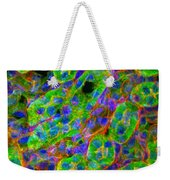 Light Micrograph Of Kidney Tissue Weekender Tote Bag by Lauren Piedmont
