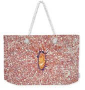 Liver Tissue Of A Cat Lm Weekender Tote Bag