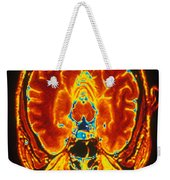 Mri Of Brain Weekender Tote Bag