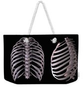 Multiple View Of The Rib Cage Weekender Tote Bag