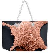 Mycoplasma, Sem Weekender Tote Bag