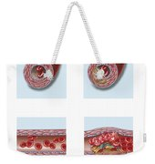 Normal Artery Compared To Plaque Weekender Tote Bag