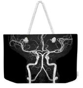 Normal Intracranial Mra Weekender Tote Bag