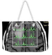 Post Operative Mr Spectroscopy For Gbm Weekender Tote Bag