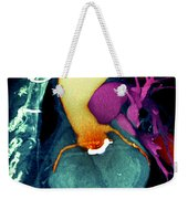 Prosthetic Heart Valve 3d Ct Scan Weekender Tote Bag
