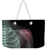 Shoulder Injury Weekender Tote Bag