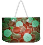 Sickle Cell Anemia With Red Blood Cells Weekender Tote Bag