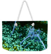 Surface Of Leaf With Fungal Infections Weekender Tote Bag