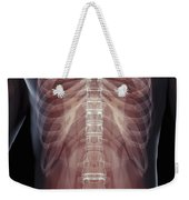 The Muscles Of The Torso Weekender Tote Bag