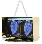 Turtle X-ray Weekender Tote Bag