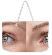 Womans Eye With And Without Wrinkles Weekender Tote Bag
