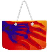 X-ray Of Hand With Rheumatoid Arthritis Weekender Tote Bag