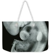 30 Day Old Human Embryo Weekender Tote Bag by Omikron