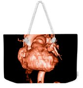 3d Cta Of Heart Weekender Tote Bag by Medical Body Scans