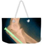 Broken Arm With Metal Pin, X-ray Weekender Tote Bag