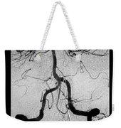 Cerebral Angiogram Weekender Tote Bag