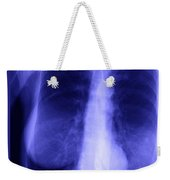 Chest X-ray Of Female Weekender Tote Bag