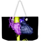 Color Enhanced 3d Cta Of Heart Weekender Tote Bag
