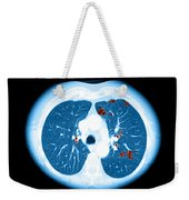 Emphysema On Ct Chest Weekender Tote Bag