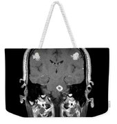 Mri Of Acute Ms Weekender Tote Bag