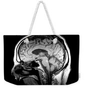 Mri Of Alcoholism Related Vermian Weekender Tote Bag