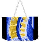Normal Lumbar Spine Weekender Tote Bag