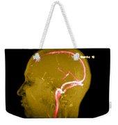 Normal Venous Anatomy Weekender Tote Bag