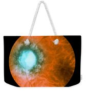 Retina Infected By Syphilis Weekender Tote Bag