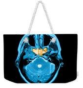 Sinusitis Weekender Tote Bag